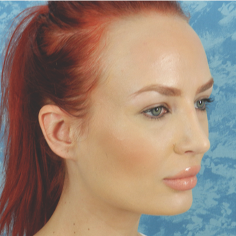 Rhinoplasty after 3124835