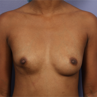 25-34 year old woman treated with Breast Augmentation before 3226372
