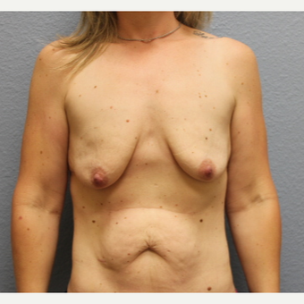 35-44 year old woman treated with Breast Lift with Implants before 3685938