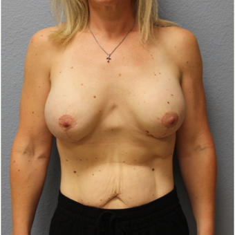 35-44 year old woman treated with Breast Lift with Implants after 3685938