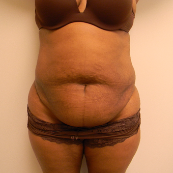 35-44 year old woman treated with Tummy Tuck before 3180358
