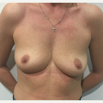 Breast augmentation before 3005033