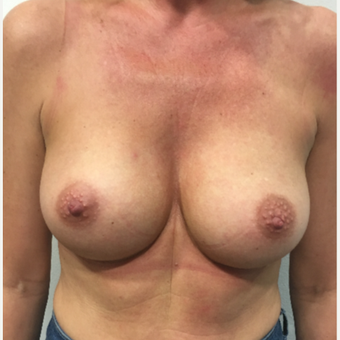 Breast augmentation after 3005033