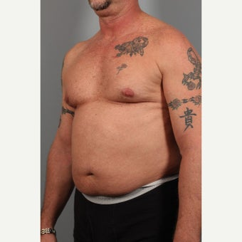 55-64 year old man treated with Liposuction before 2044441