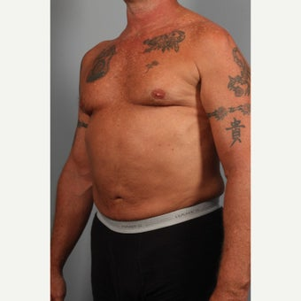 55-64 year old man treated with Liposuction after 2044441