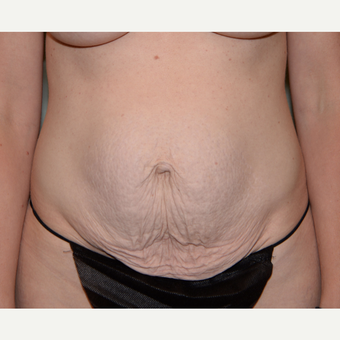 35 year old woman treated with Tummy Tuck before 3413997