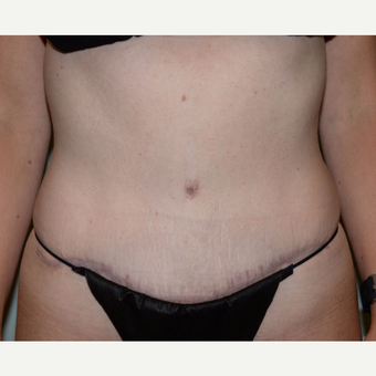 35 year old woman treated with Tummy Tuck after 3413997