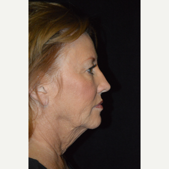 65-74 year old woman treated with Facelift before 3488162
