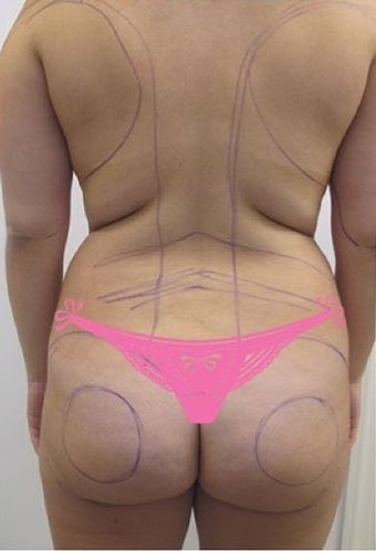 35-44 year old woman treated with Slim Lipo before 3496202