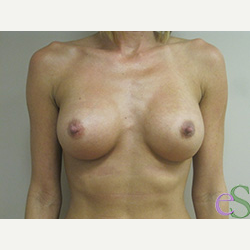 Breast Implants after 3373659