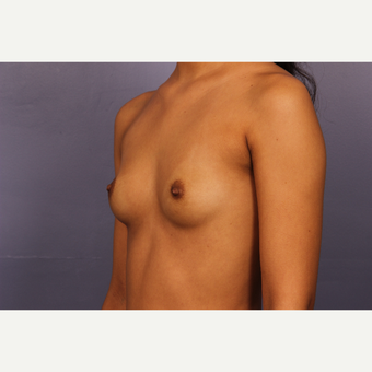 Breast Augmentation with Tear-Drop Shaped Gummy Bear Implants before 3191044