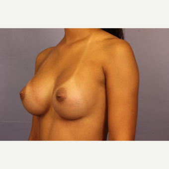 Breast Augmentation with Tear-Drop Shaped Gummy Bear Implants after 3191044