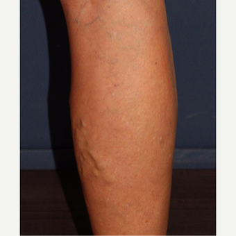 45-54 year old woman treated with Sclerotherapy before 3244565