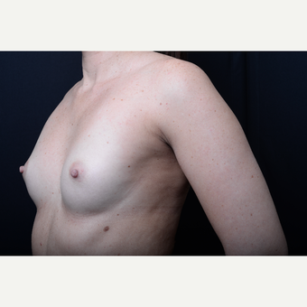 35-44 year old woman treated with Breast augmentation before 3367097