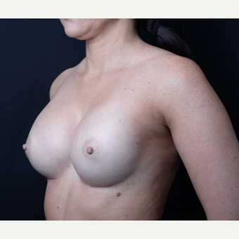 35-44 year old woman treated with Breast augmentation after 3367097