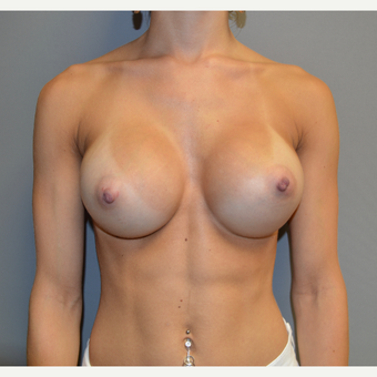 Breast Augmentation after 3123881