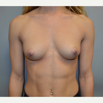 Breast Augmentation before 3123881