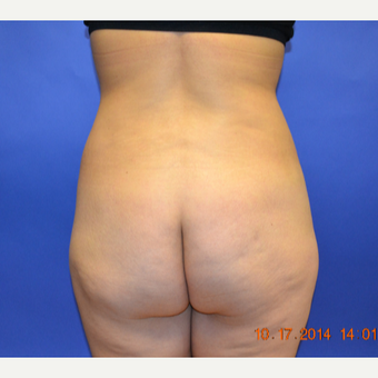 35-44 year old woman treated with Brazilian Butt Lift before 3170214