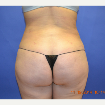 35-44 year old woman treated with Brazilian Butt Lift after 3170214