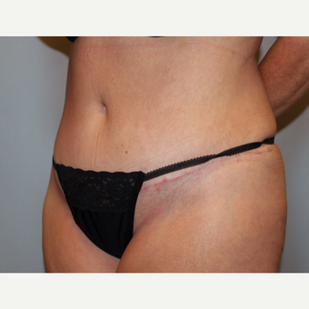 45-54 year old woman treated with Tummy Tuck after 3803275