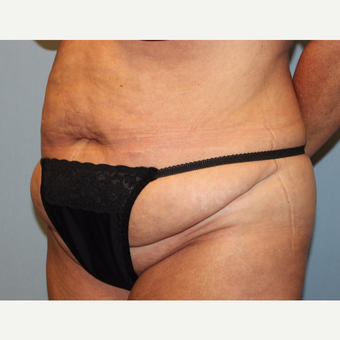 45-54 year old woman treated with Tummy Tuck before 3803275