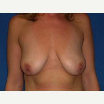 35-44 year old woman treated with Breast Lift with Implants before 3009092
