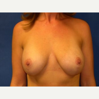 35-44 year old woman treated with Breast Lift with Implants after 3009092