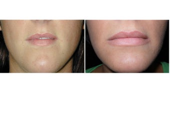 Lip Augmentation before 1254698