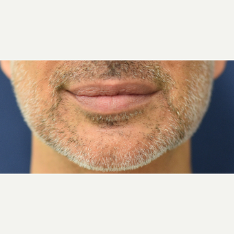 45-54 year old man treated with Lip Reduction after 3629898