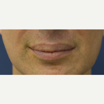 45-54 year old man treated with Lip Reduction before 3629898