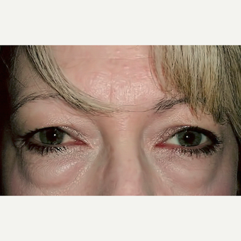 Eyelid Surgery (Blepharoplasty) before 3831614