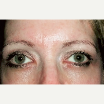 Eyelid Surgery (Blepharoplasty) after 3831614