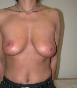 35-44 year old woman treated with Breast Lift before 2757531