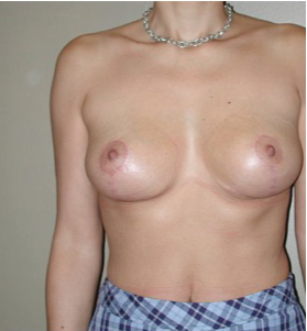35-44 year old woman treated with Breast Lift after 2757531