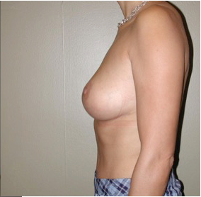 35-44 year old woman treated with Breast Lift 2757531