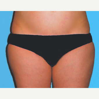 Liposuction after 3810599