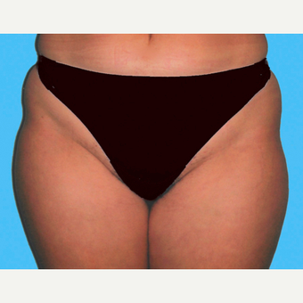 Liposuction before 3810599