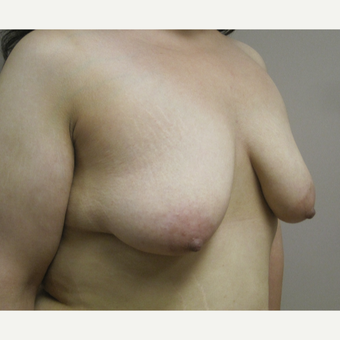 Breast Lift with Implants before 3630582