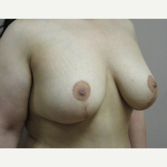 Breast Lift with Implants after 3630582