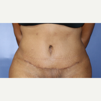 18-24 year old woman treated with Tummy Tuck Revision after 3695160
