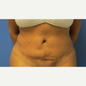 18-24 year old woman treated with Tummy Tuck Revision before 3695160