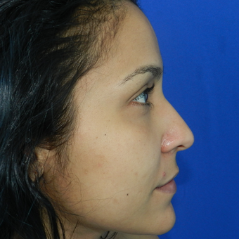 25-34 year old woman treated with Rhinoplasty before 3056572