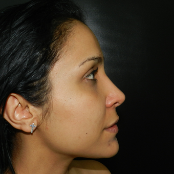 25-34 year old woman treated with Rhinoplasty after 3056572