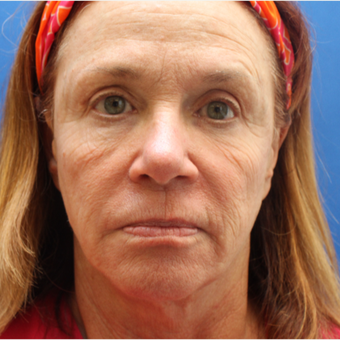55-64 year old woman treated with Laser Resurfacing before 3104416