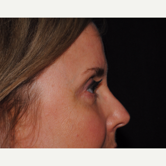 50 year old woman undergoes upper and lower blepharoplasty after 3439855