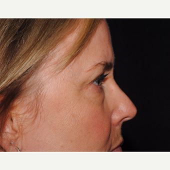 50 year old woman undergoes upper and lower blepharoplasty before 3439855