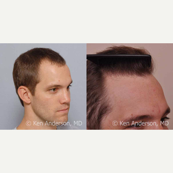 32yo man - ARTAS Robotic Hair Transplant surgery with PRP and ACell - 14 month post-op pics after 3009204