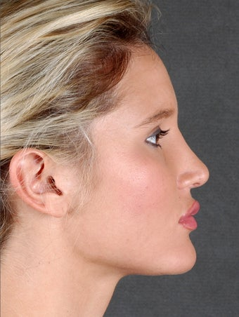 Rhinoplasty after 970097