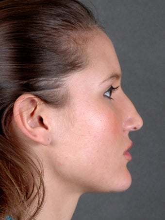 Rhinoplasty before 970097