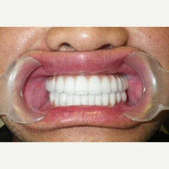55-64 year old man treated with All-on-4 Dental Implants after 2454749